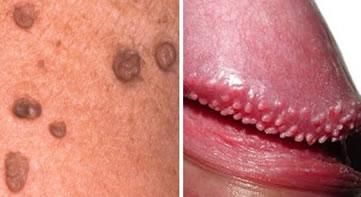 Pimples penile Pimple or
